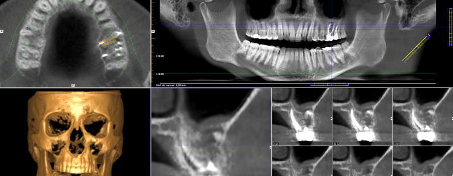 Radiología en Bilbao, tratamientos dentales de Clínica Ortiz-Vigón