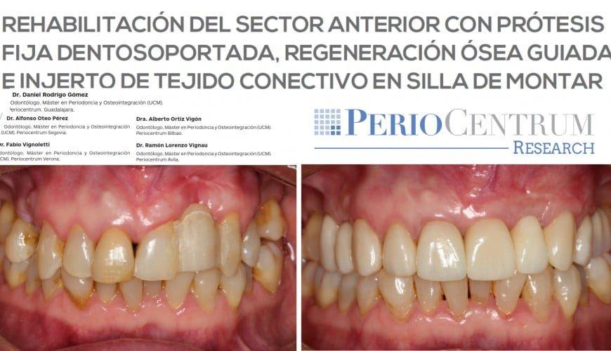 Dr-Ortiz-Vigon-et-al-PerioCentrum-Research.023-870x500