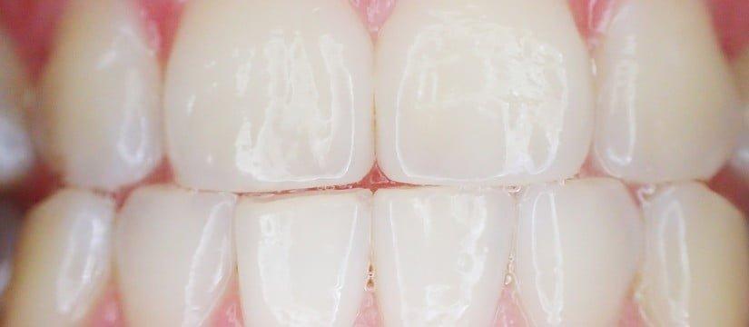Bruxismo y dientes