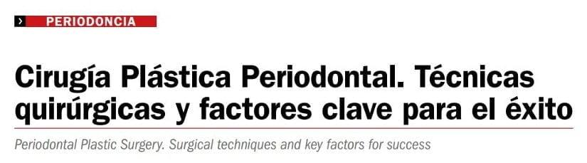 Artículo sobre cirugía plástica periodontal
