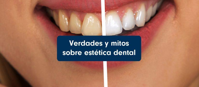 Verdades y mitos sobre estética dental
