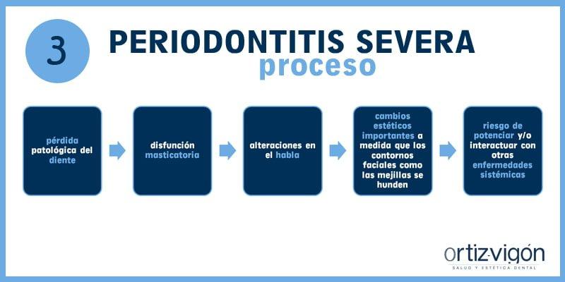 Periodontitis severa: el abc de las enfermedades periodontales