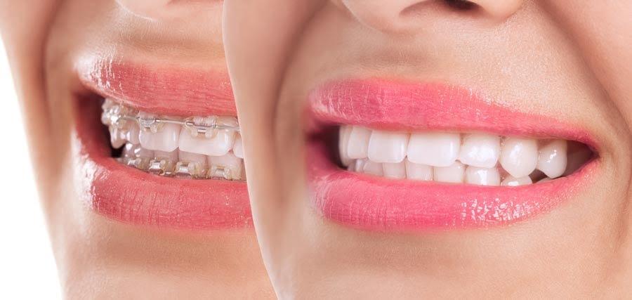 Ortodoncia estética en Clínica dental Ortiz-Vigón