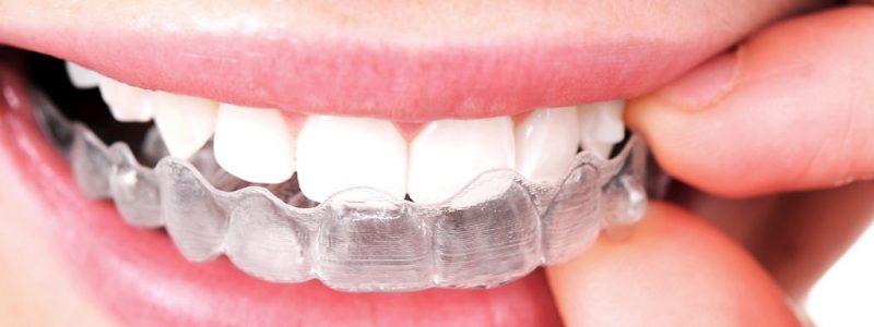 Ortodoncia invisible en Clínica Ortiz-Vigón: Invisalign