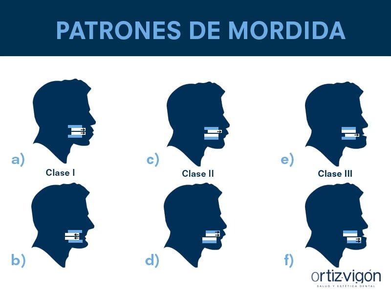 Patrones de mordida. Ortodoncia.