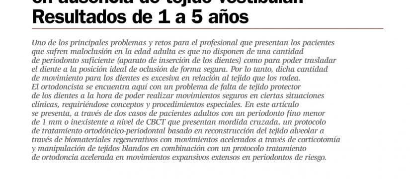 Protocolo ortodóncico quirúrgico para la resolución de casos complejos en ausencia de tejido vestibular. Resultados de 1 a 5 años